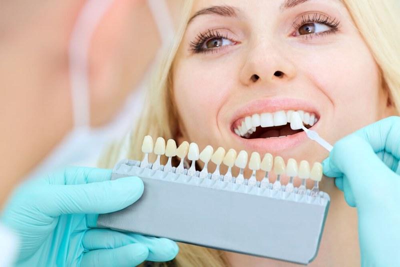 Sbiancamento dentale, l'importanza di avere un sorriso brillante