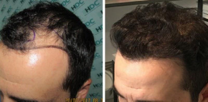 Tutti i vantaggi del trapianto di capelli